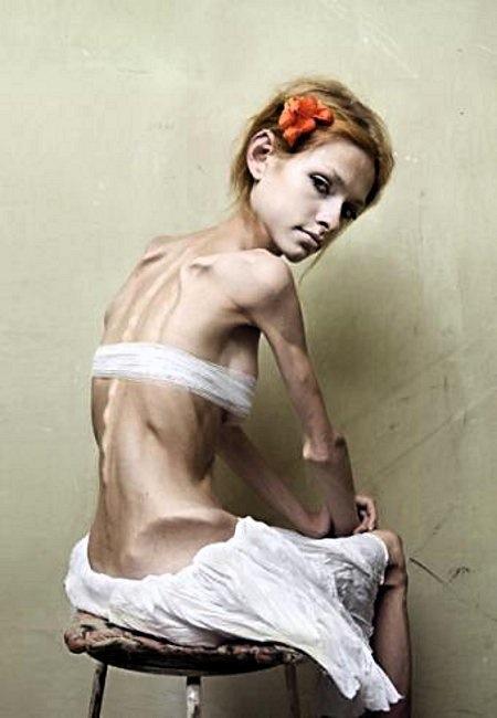 Anorexia-victim